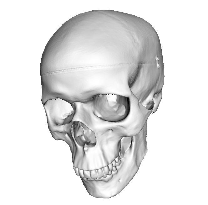 Escaneado en 3D