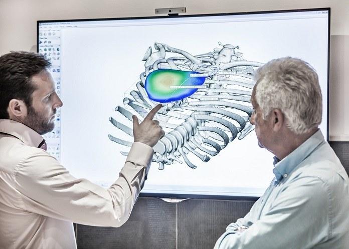 Creacion de implantes de torax con los escaneres 3d de artec